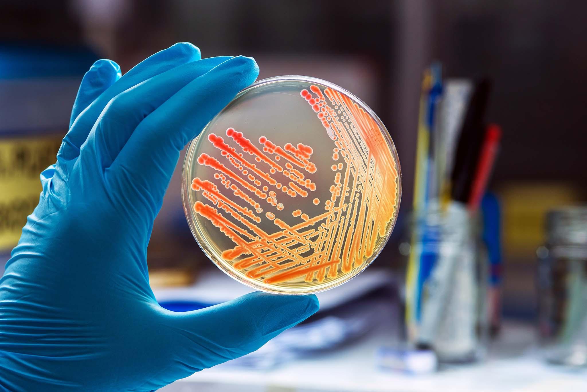 Mikrobiologische Analyse mit Bakterien aus Kosmetik Ausstrich zur Keimidentifizierung